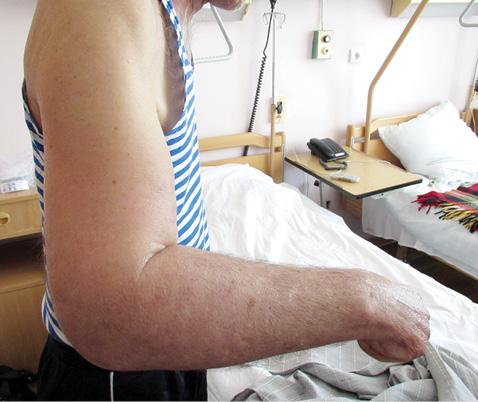 Склеродермоподібний паранеопластичний синдром упацієнта зраком шлунка: опис клінічного випадку