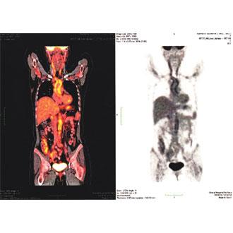 Випадок ранньої «pre-pulseless» діагностики неспецифічного аортоартеріїту