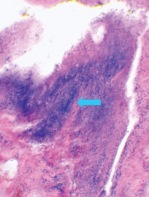 Гістопатологія, частота виникнення і кореляційна залежність морфологічних показників ураження голівки стегнової кістки та капсули кульшового суглоба ухворих наанкілозивний спондиліт