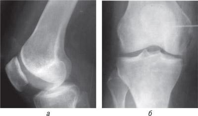 6716 Ятрогенный фактор при заболеваниях суставов, обусловленных наследственной предрасположенностью