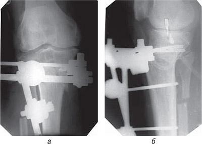 7214 Ятрогенный фактор при заболеваниях суставов, обусловленных наследственной предрасположенностью