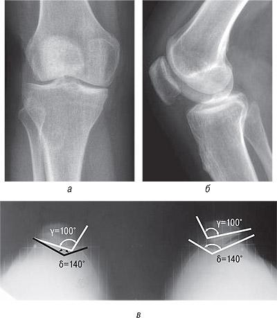 8231 Ятрогенный фактор при заболеваниях суставов, обусловленных наследственной предрасположенностью