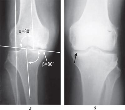 83123 Ятрогенный фактор при заболеваниях суставов, обусловленных наследственной предрасположенностью