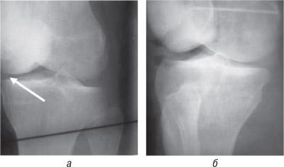 9371 Ятрогенный фактор при заболеваниях суставов, обусловленных наследственной предрасположенностью