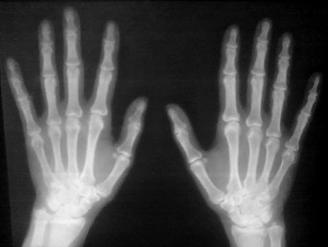 Випадок глюкокортикоїд індукованого остеопорозу на тлі ювенільного ревматоїдного артриту