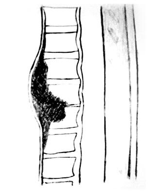 Ураження хребта у хворих на ревматоїдний артрит