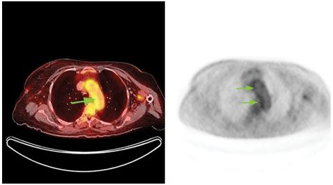 Диагностика иоценка эффективности лечения неспецифического аортоартериита (артериита Такаясу) спомощью позитронно эмиссионной томографии/компьютерной томографии (ПЭТ/КТ): клиническое наблюдение