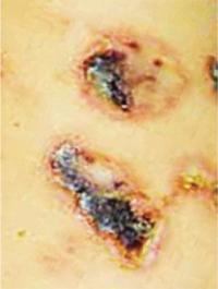 44 Геморрагический васкулит Шенляйна— Геноха, начавшийся вдетском ивзрослом возрасте