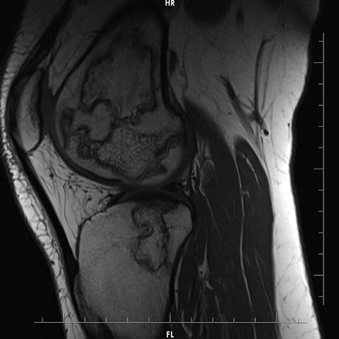 Розвиток мультифокального асептичного остеонекрозу впацієнта іздерматоміозитом як ускладнення глюкокортикоїдної терапії