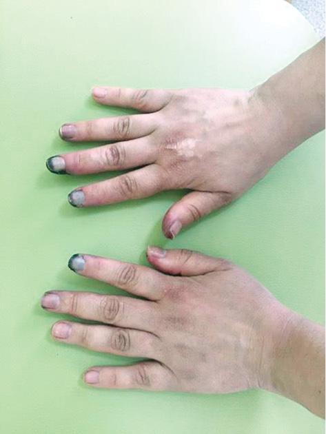 Развитие критической дигитальной ишемии упациентки сдерматомиозитом иантисинтетазным синдромом: клинический случай