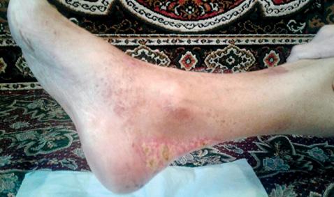 Клинический случай развития гангренозной пиодермии упациентки сболезнью Шегрена