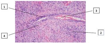 Ураження орбіти очей при гранулематозному поліангіїті на прикладі клінічних спостережень