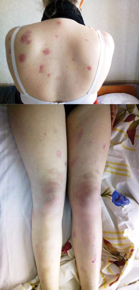 Клинический случай развития Sweet синдрома