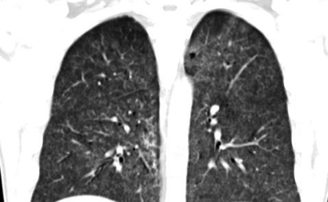 Успешное лечение синдрома Гудпасчера ритуксимабом: описание клинического случая