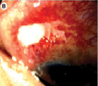 Офтальмологические проявления системных васкулитов