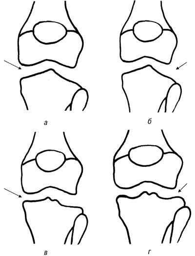 fig 1 Дискоидный мениск коленного сустава как компенсаторно приспособительная  реакция (функция) организма (коленногосустава)