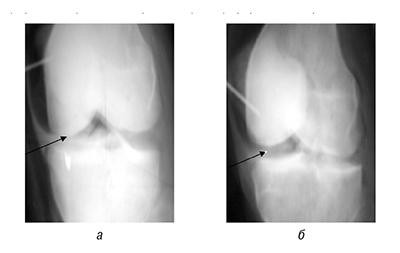 fig 3 Дискоидный мениск коленного сустава как компенсаторно приспособительная  реакция (функция) организма (коленногосустава)