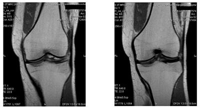 fig 5 Дискоидный мениск коленного сустава как компенсаторно приспособительная  реакция (функция) организма (коленногосустава)
