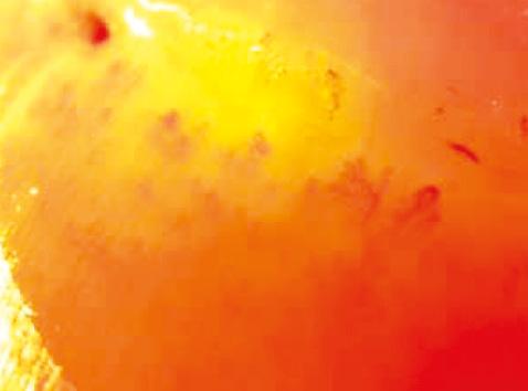 Проблема сосуществования системного склероза, склеродермоподобного паранеопластического синдрома инеопластического процесса: обзор литературы иразбор клинических случаев