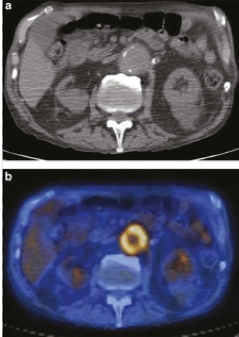 Кардиоваскулярная патология убольных анкилозирующим спондилитом: обзор литературы исобственные наблюдения