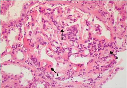 Поражение почек у больных системной красной волчанкой: важность гистологического диагноза в выборе рациональной терапии. Клинический случай