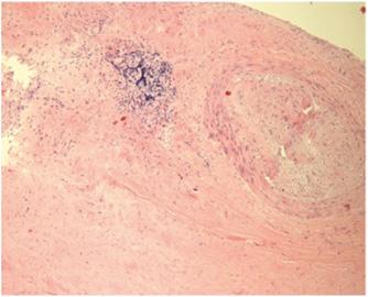 Клінічні випадки прижиттєвої діагностики ревматоїдного менінгіту згістологічною верифікацією