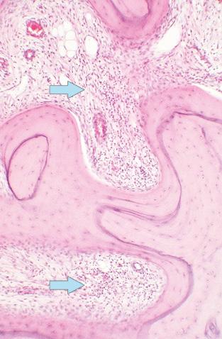 Морфологічні показники патологічних змін кульшового суглоба, їхчастота такореляційні залежності міжпоказниками гістоморфометрії спонгіози голівки стегнової кістки ухворих на ревматоїдний артрит